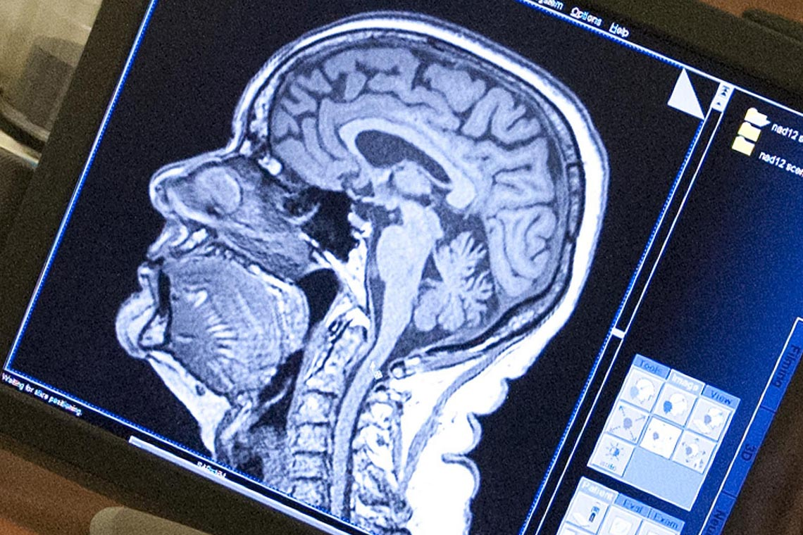 Photo of image of brain