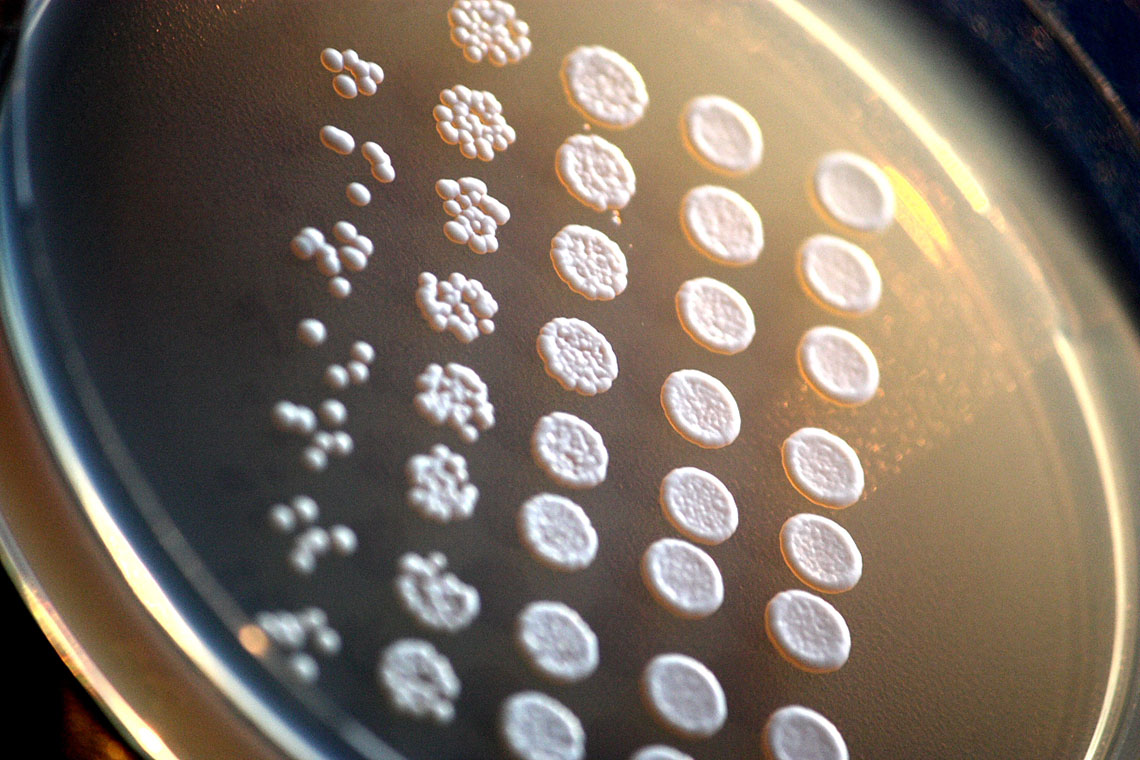 Photo of yeast cells