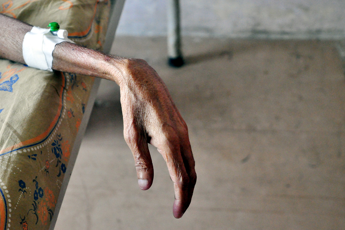 photo of TB patient's hand
