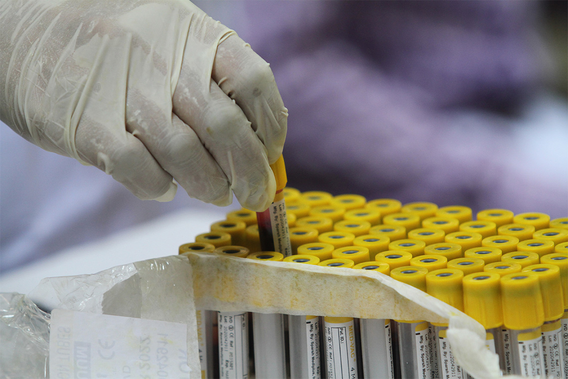 a lab technician handles a vial of blood for a Covid-19 antibody test