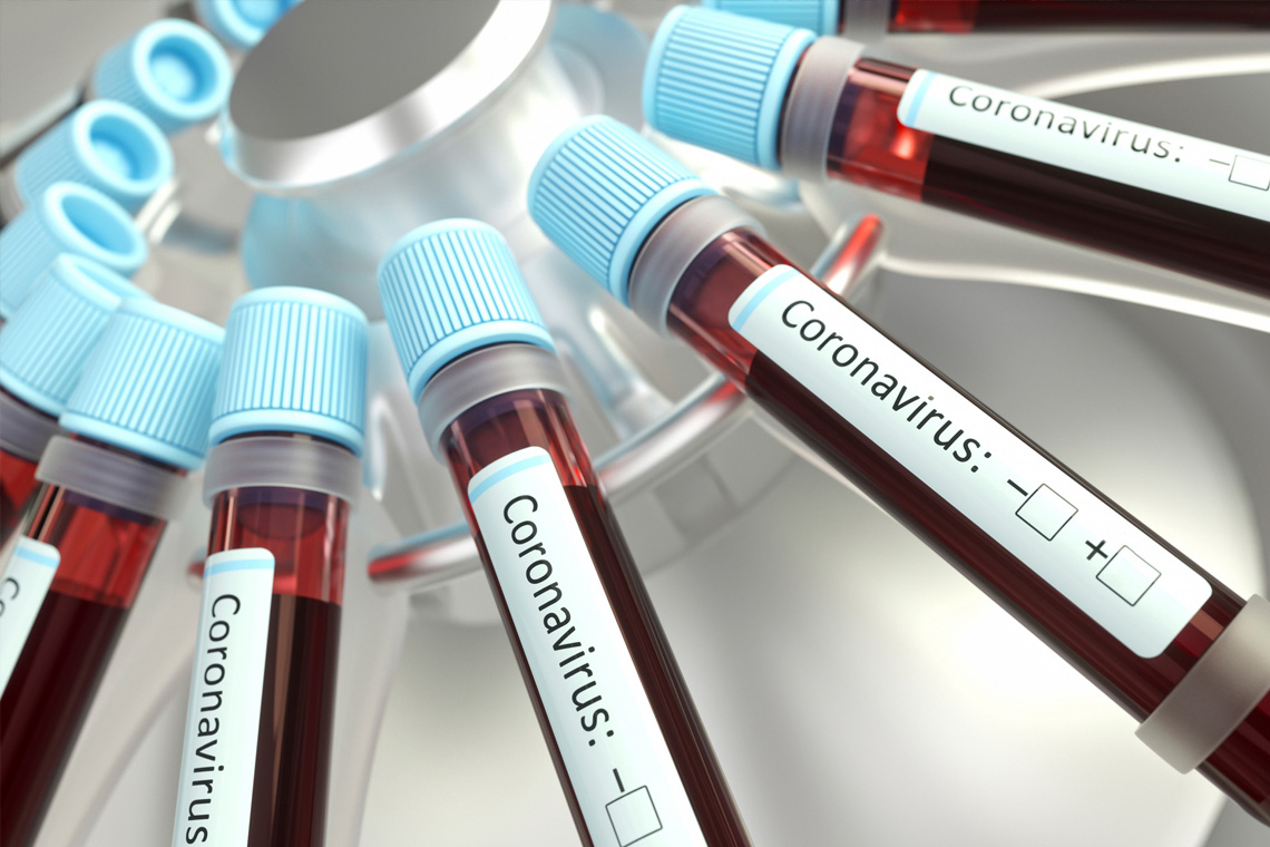 vials of blood in a centrifuge labelled coronavirus