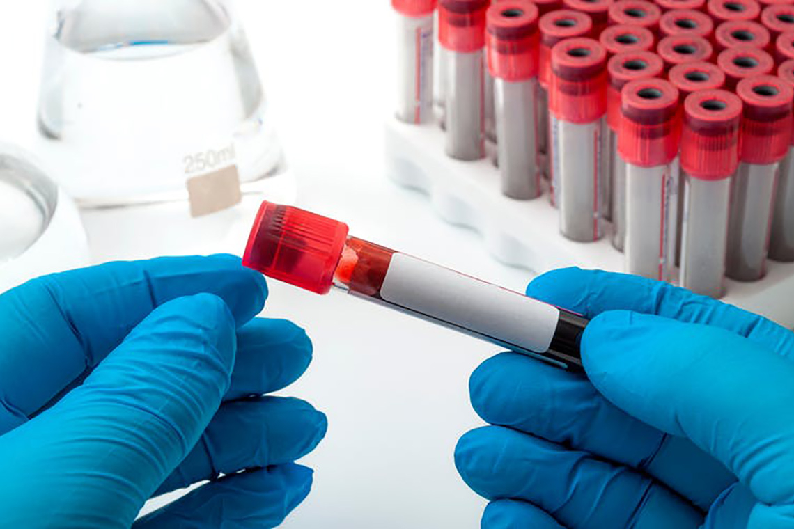 Gloved hands holding a vial of blood in a laboratory